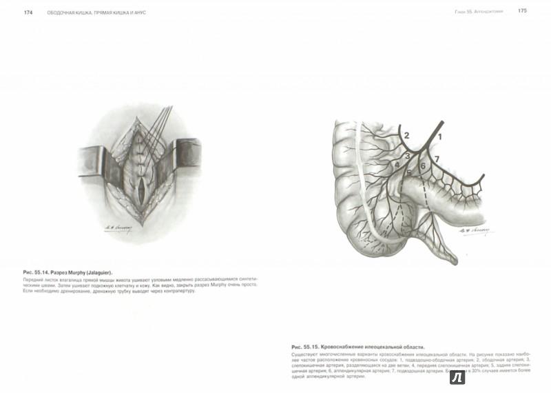 Иллюстрация 1 из 40 для Атлас абдоминальной хирургии. Том 3. Хирургия тонкой и толстой кишки, прямой кишки и анальной обл. - Эмилио Итала | Лабиринт - книги. Источник: Лабиринт