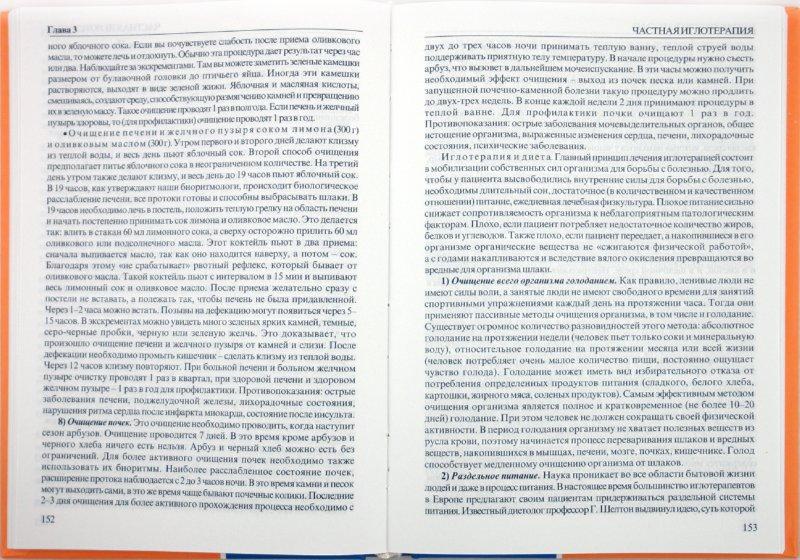Иллюстрация 1 из 12 для Практическая иглотерапия - Валерий Молостов | Лабиринт - книги. Источник: Лабиринт