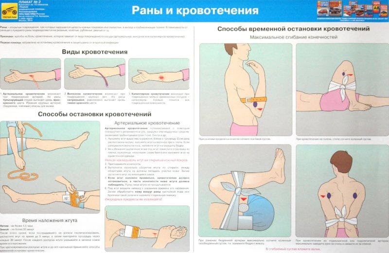 первая медицинская помощь при дтп с иллюстрациями Вэйнамонд