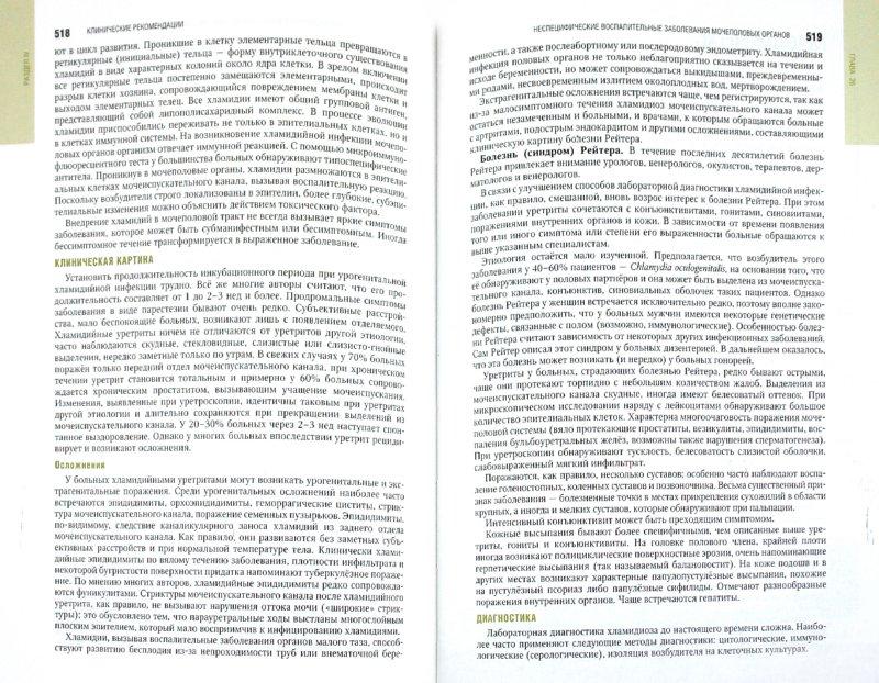 Иллюстрация 1 из 46 для Урология. Национальное руководство (+CD)   Лабиринт - книги. Источник: Лабиринт