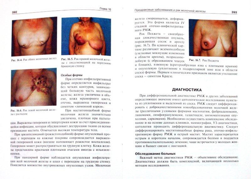 Иллюстрация 1 из 16 для Онкология. Учебник - Давыдов, Ганцев | Лабиринт - книги. Источник: Лабиринт