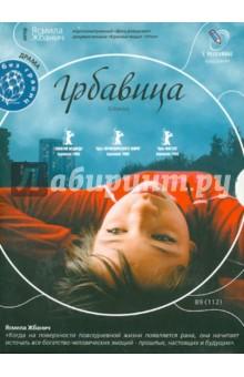 Жбанич Ясмила Грбавица (DVD)
