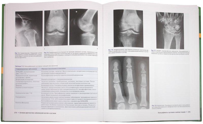 лучевые синдромы заболевания костей и суставов