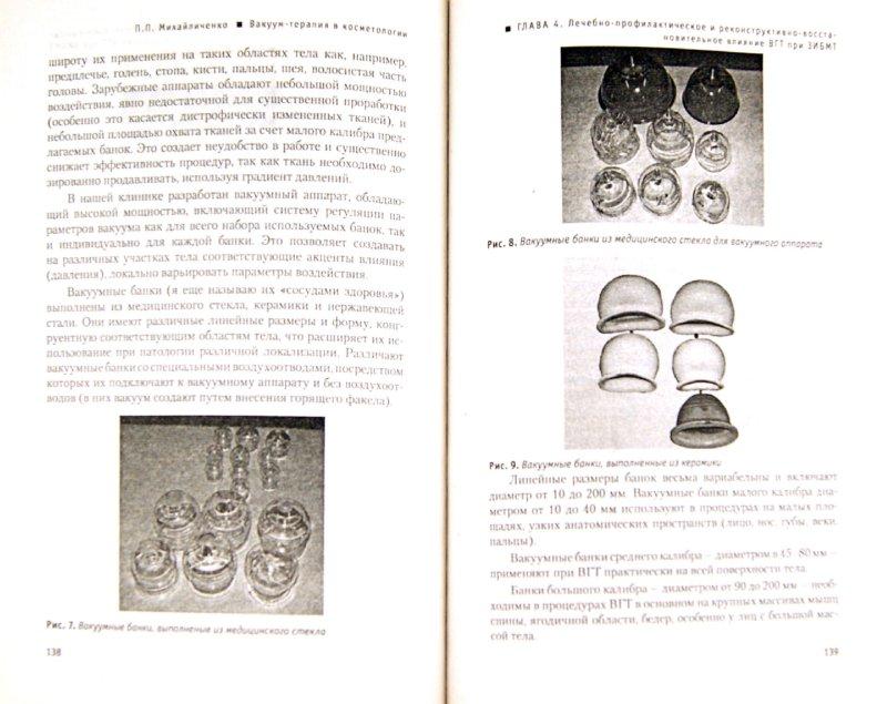 Иллюстрация 1 из 2 для Вакуум-терапия в косметологии. Практическое руководство для массажистов - П. Михайличенко | Лабиринт - книги. Источник: Лабиринт