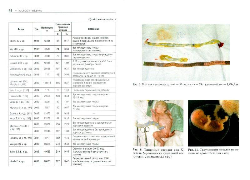 Иллюстрация 1 из 10 для Патология пуповины - Челеби Гагаев | Лабиринт - книги. Источник: Лабиринт