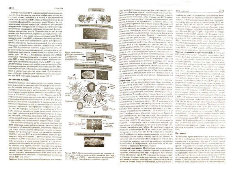 Истории болезни по гипотиреозу