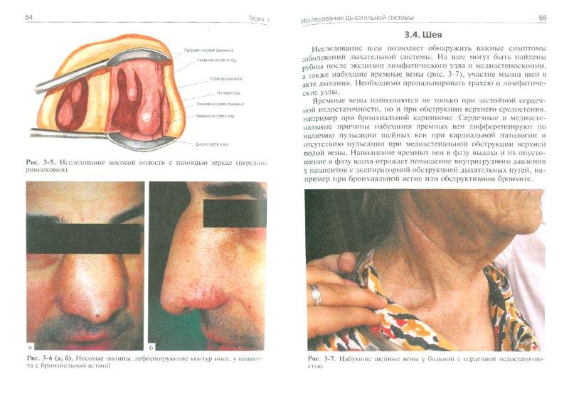 Иллюстрация 1 из 6 для Пропедевтика внутренних болезней. Пульмонология - Ивашкин, Драпкина | Лабиринт - книги. Источник: Лабиринт