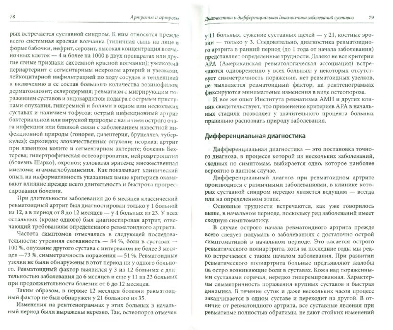 бубновский артриты артрозы