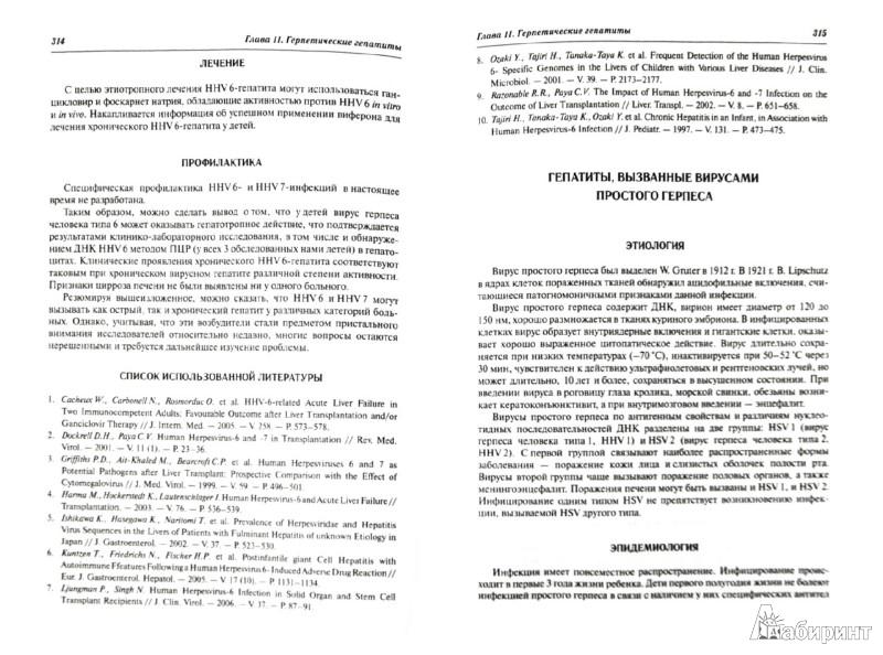 Иллюстрация 1 из 6 для Инфекционная гепатология. Руководство для врачей - Учайкин, Чередниченко, Смирнов | Лабиринт - книги. Источник: Лабиринт