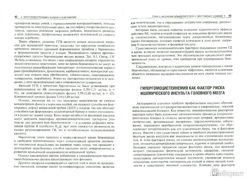 Иллюстрация 1 из 6 для Гипергомоцистеинемия в клинической практике: руководство - Ефимов, Озолиня, Кашежева, Макаров | Лабиринт - книги. Источник: Лабиринт
