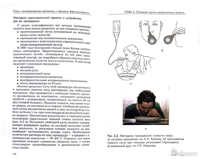Иллюстрация 1 из 4 для Ринит. Патогенетические механизмы и принципы фармакотерапии - Андрей Лопатин   Лабиринт - книги. Источник: Лабиринт