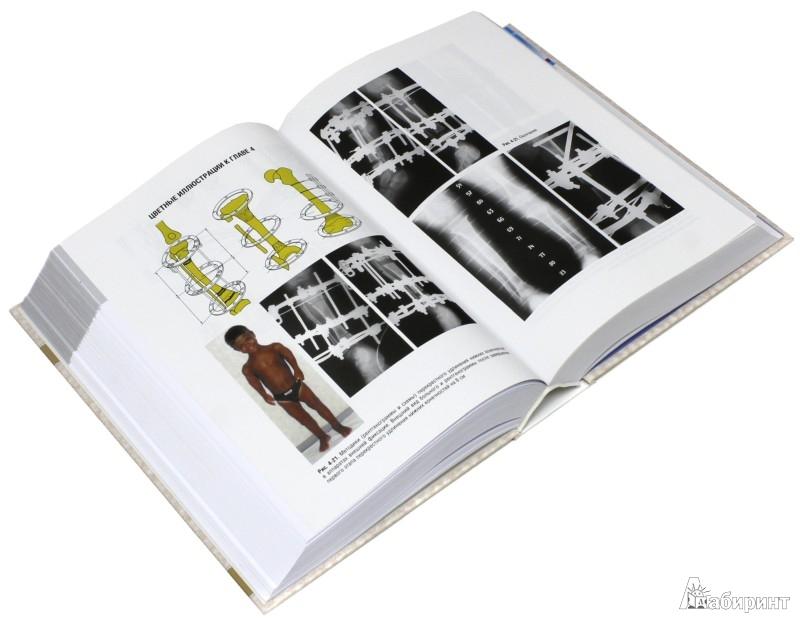 Иллюстрация 1 из 32 для Ортопедия. Национальное руководство - Котельников, Миронов, Айзенберг | Лабиринт - книги. Источник: Лабиринт
