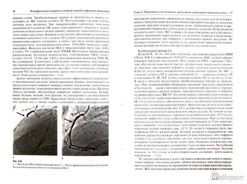 Иллюстрация 1 из 7 для Реперфузионная терапия в остром периоде инфаркта миокарда - Хубутия, Газарян, Захаров   Лабиринт - книги. Источник: Лабиринт
