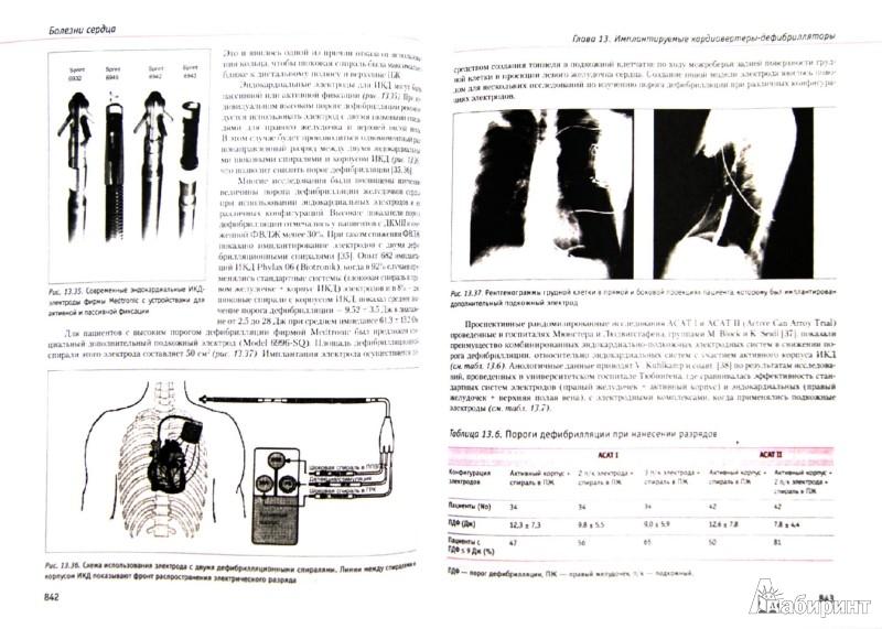 Иллюстрация 1 из 18 для Болезни сердца. Руководство для врачей - Оганов, Фомина, Алекян, Аронов | Лабиринт - книги. Источник: Лабиринт