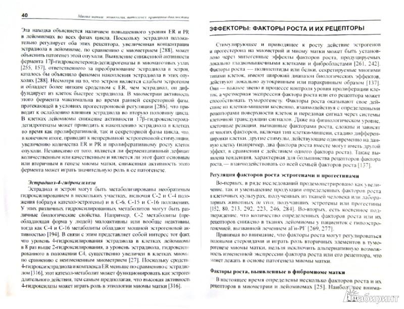 Иллюстрация 1 из 6 для Миома матки: этиология, патогенез, принципы диагностики - Ярмолинская, Цыпурдеева, Долинский | Лабиринт - книги. Источник: Лабиринт