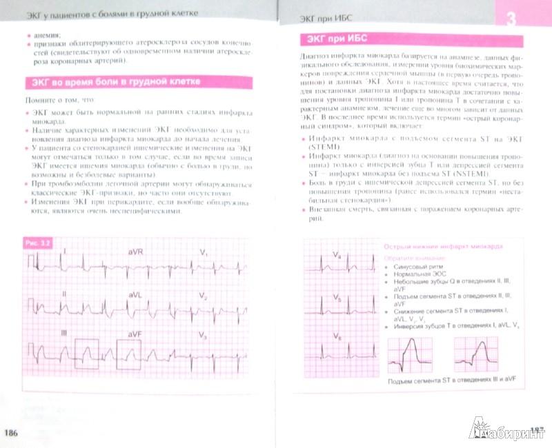 Скачать книгу экг в практике врача || физика книги скачать.