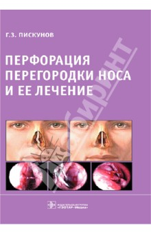 Перфорация перегородки носа и ее лечение декоративные перегородки для зонирования комнаты калуга