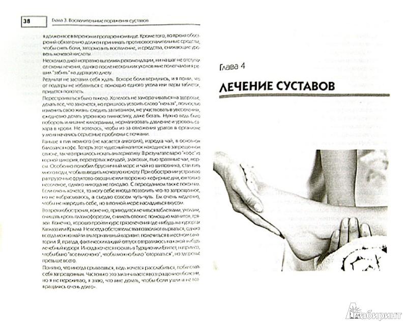 Иллюстрация 1 из 9 для Лечение и чистка суставов. Классические и нетрадиционные методы | Лабиринт - книги. Источник: Лабиринт