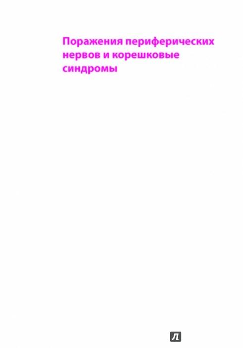 Иллюстрация 1 из 38 для Поражения периферических нервов и корешковые синдромы - Мументалер, Штер, Мюллер-Фаль | Лабиринт - книги. Источник: Лабиринт
