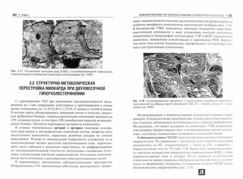 Ишемическая кардиомиопатия - Гавриш Александр Семенович, Пауков ...