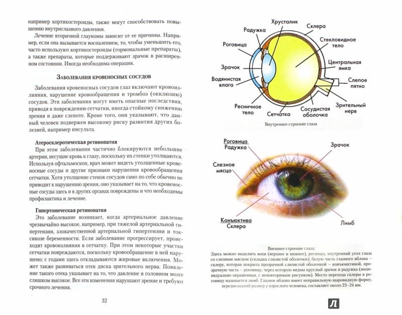 Иллюстрация 1 из 10 для Болезни глаз. Причины, лечение, профилактика. Мифы и реальность - Неумывакин, Зверев | Лабиринт - книги. Источник: Лабиринт