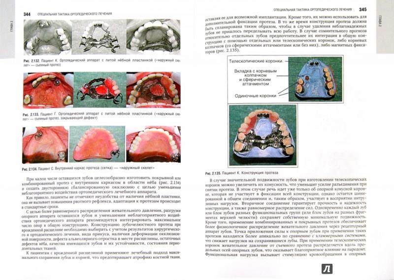 национальное руководство по стоматологии ортопедической - фото 4