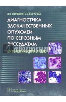 Диагностика злокачественных опухолей по серозным экссудатам. Цитологический атласОнкология<br>Атлас подготовлен в качестве практического руководства по цитологическому исследованию плевральных и перитонеальных экссудатов при различных злокачественных новообразованиях.<br>В книге подробно описана цитологическая картина реактивных экссудатов, метастатических экссудатов при различной локализации первичной опухоли, отдельные главы посвящены мезотелиоме и псевдомиксоме. Продемонстрированы возможности иммуноцитохимического метода в проведении дифференциальной диагностики реактивного и метастатического экссудата в диагностически сложных наблюдениях, определении источника метастазирования при неустановленном первичном опухолевом очаге. Показана высокая эффективность и быстрота иммунофлюоресцентного метода при срочных интраоперационных исследованиях экссудатов с целью уточнения распространенности опухолевого процесса.<br>Издание предназначено для клинических цитологов, патологоанатомов и онкологов.<br>