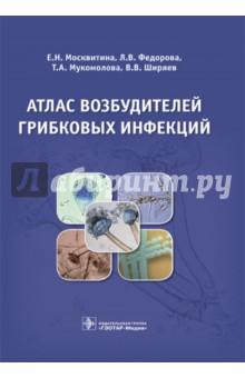 Атлас возбудителей грибковых инфекцийИнфекционные болезни<br>В книге описаны основные представители патогенных грибов - возбудителей инфекционных заболеваний. Детально освещены принципы и способы культивирования грибов, методы микробиологической диагностики грибковых заболеваний. Руководство иллюстрировано фотографиями клинических проявлений микозов, макро- и микроморфологий грибов.<br>Издание предназначено для микробиологов, специалистов лабораторной службы, врачей клинических специальностей, интересующихся данной проблемой, студентов медицинских вузов и слушателей постдипломного образования.<br>