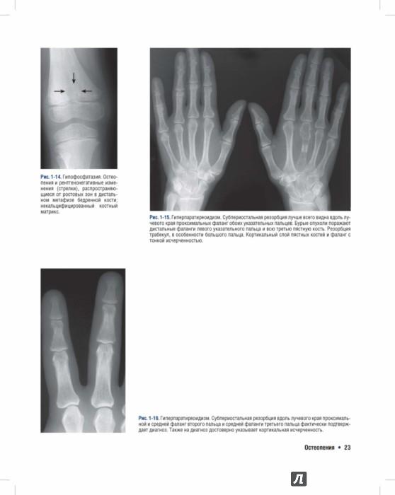 диагностика костей и суставов в минске