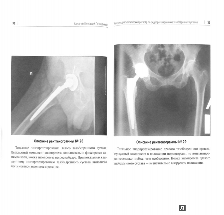 Ульяновск замена тазобедренного сустава
