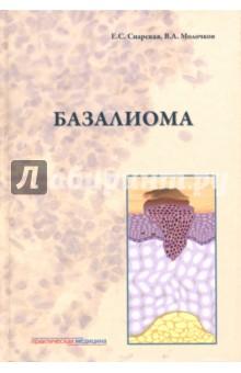БазалиомаКожные и венерические болезни<br>Книга посвящена актуальным проблемам этиопатогенеза, клиники, патогистологии, иммуноморфологии диагностики и лечения различных форм базальноклеточного рака кожи, включая особую базосквамозную форму - метатипический рак кожи - и наследственный синдром базальноклеточного невуса - синдром Горлина-Гольтца.<br>Книга основана на многолетнем опыте ведения более 2 тыс. больных этой патологией. В книге анализируются различные клинические и гистологические типы опухолей и современные методы их лечения, в том числе ФДТ, интерферонотерапия. Издание иллюстрировано фотографиями, отражающими клинические, гистологические, иммуногистологические изменения.<br>Для онкологов, дерматологов, косметологов, патоморфологов и других специалистов.<br>