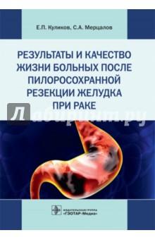 Результаты и качество жизни больных после пилоросохранной резекции желудка при ракеОнкология<br>Книга посвящена одной из самых распространенных опухолей человека - раку желудка. В ней предложена оригинальная методика резекции с сохранением привратника при раке средней трети желудка, даны описание техники операции, показания и противопоказания к ней. Также в издании приводится собственный клинический материал, где дана сравнительная клинико-функциональная оценка результатов и качества жизни больных после операции в предложенной модификации, резекции желудка по Бильрот-1 и Бильрот-2 при раке.<br>