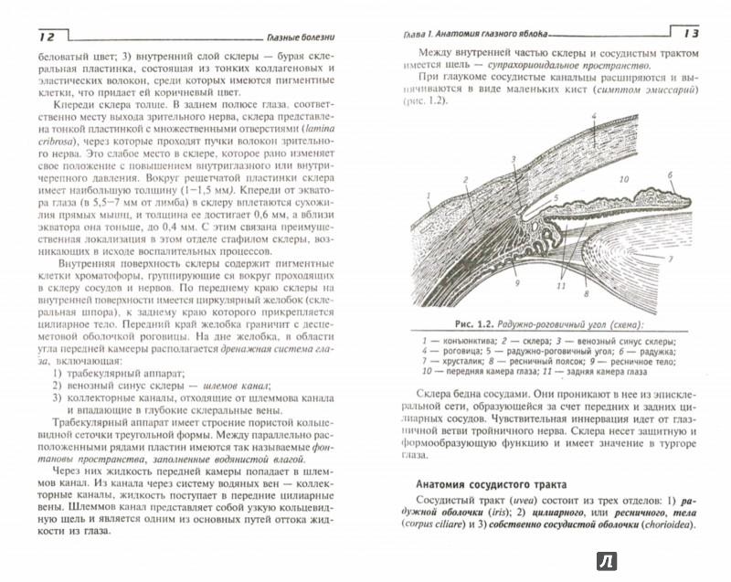 болезни шпаргалка глазные