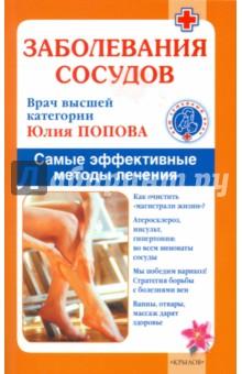 Заболевания сосудов. Лучшие методы лечения - Юлия Попова
