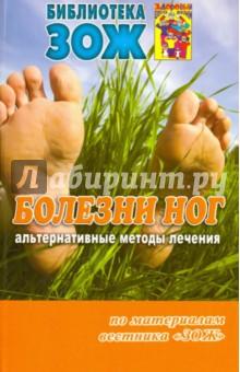 Болезни ног. Альтернативные методы лечения - Чойжинимаева, Наумов, Андрусенко
