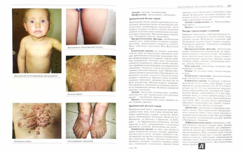 Иллюстрация 1 из 33 для Кожные и венерические болезни - Адаскевич, Козин | Лабиринт - книги. Источник: Лабиринт