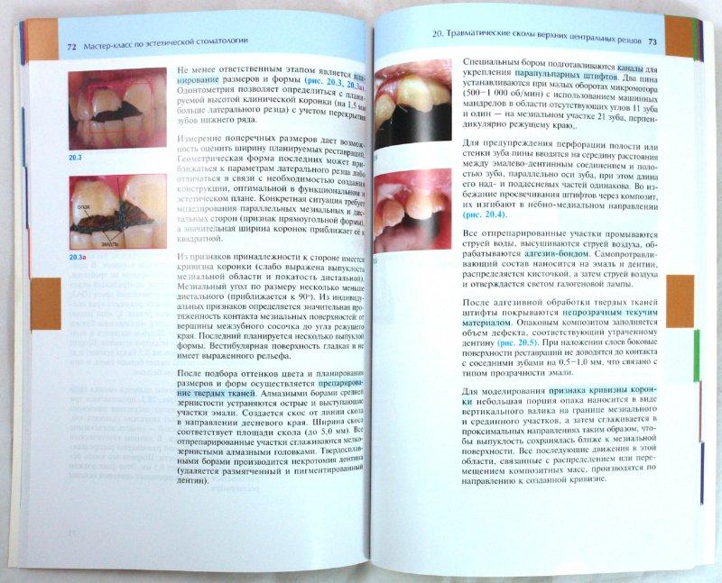 Иллюстрация 1 из 2 для Мастер-класс по эстетической стоматологии - Ирина Луцкая | Лабиринт - книги. Источник: Лабиринт