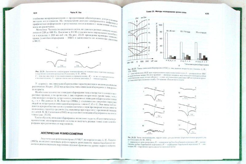 Иллюстрация 1 из 25 для Оториноларингология: Руководство. В двух томах. Том 2 - Бабияк, Говорун, Накатис | Лабиринт - книги. Источник: Лабиринт