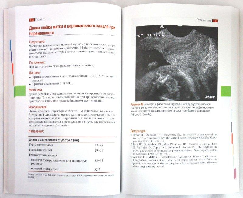 Иллюстрация 1 из 4 для Измерения при ультразвуковом исследовании - Сиду, Чонг | Лабиринт - книги. Источник: Лабиринт