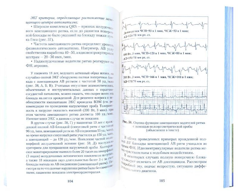 Иллюстрация 1 из 5 для Атриовентрикулярные блокады. Клиника, диагностика, показания к электрокардиотерапии - Трешкур, Бернгардт   Лабиринт - книги. Источник: Лабиринт