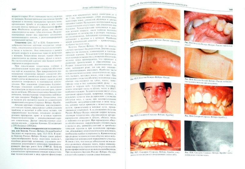 Иллюстрация 1 из 16 для Атлас заболеваний полости рта: Атлас - Лангле, Миллер | Лабиринт - книги. Источник: Лабиринт