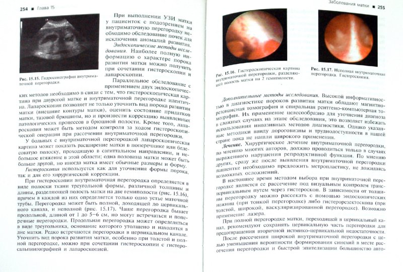 Иллюстрация 1 из 26 для Гинекология | Лабиринт - книги. Источник: Лабиринт