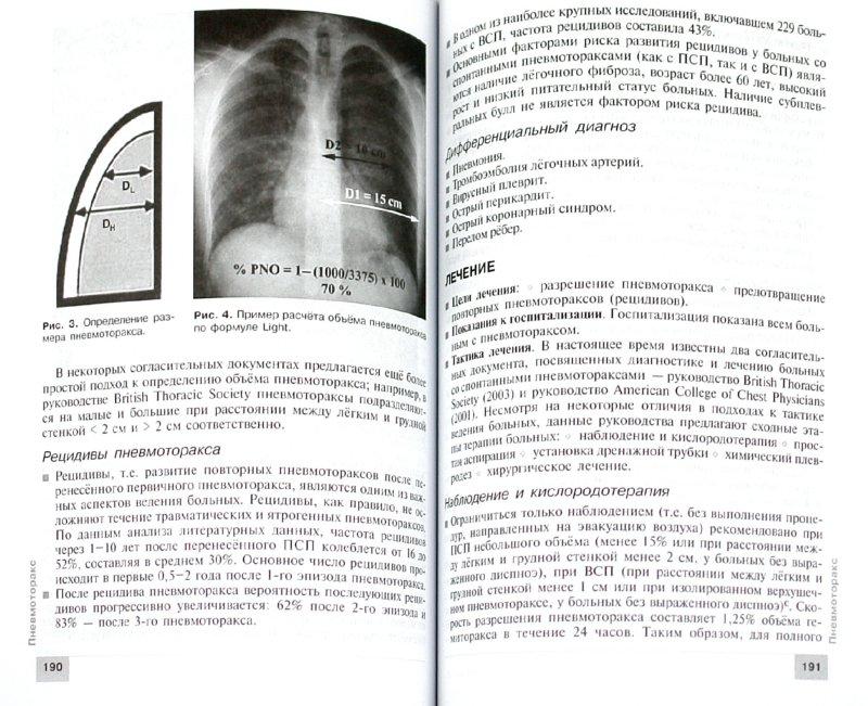 Иллюстрация 1 из 23 для Пульмонология | Лабиринт - книги. Источник: Лабиринт