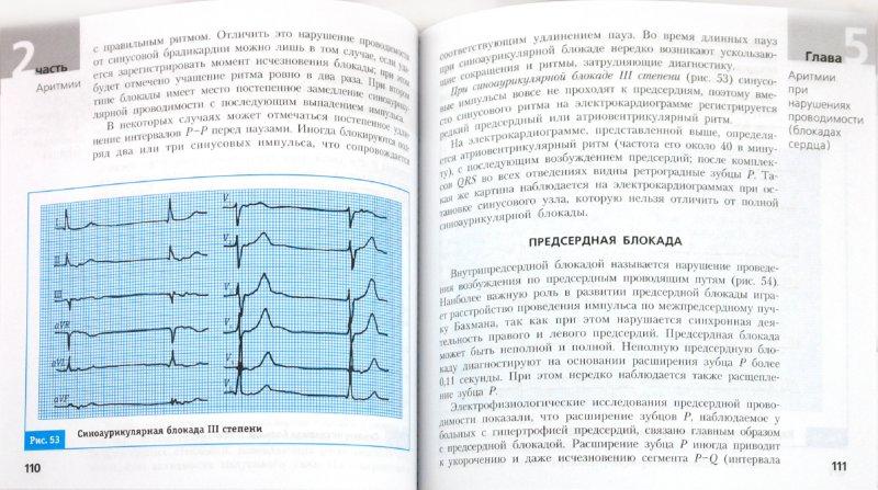 Иллюстрация 1 из 5 для ЭКГ при различных заболеваниях. Расшифровываем быстро и точно - Игорь Ламберг   Лабиринт - книги. Источник: Лабиринт