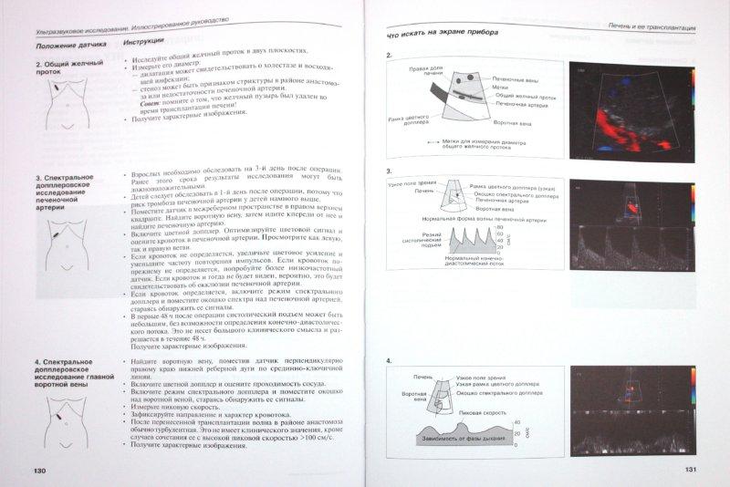 Иллюстрация 1 из 3 для Ультразвуковое исследование. Иллюстрированное руководство - Олти, Хоуи | Лабиринт - книги. Источник: Лабиринт