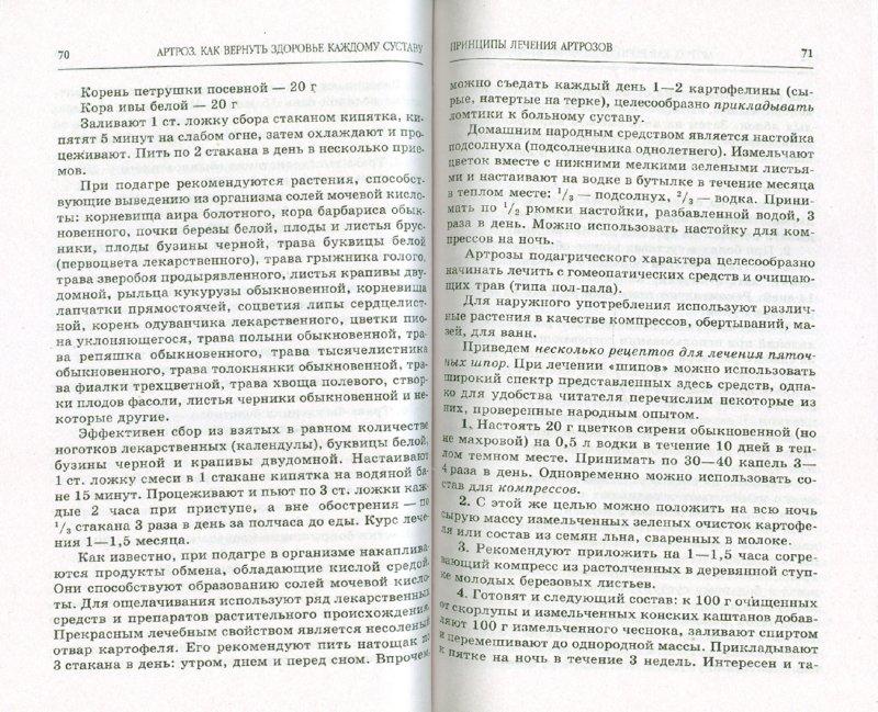 Иллюстрация 1 из 6 для Артроз. Самые эффективные методы лечения - Лев Кругляк | Лабиринт - книги. Источник: Лабиринт