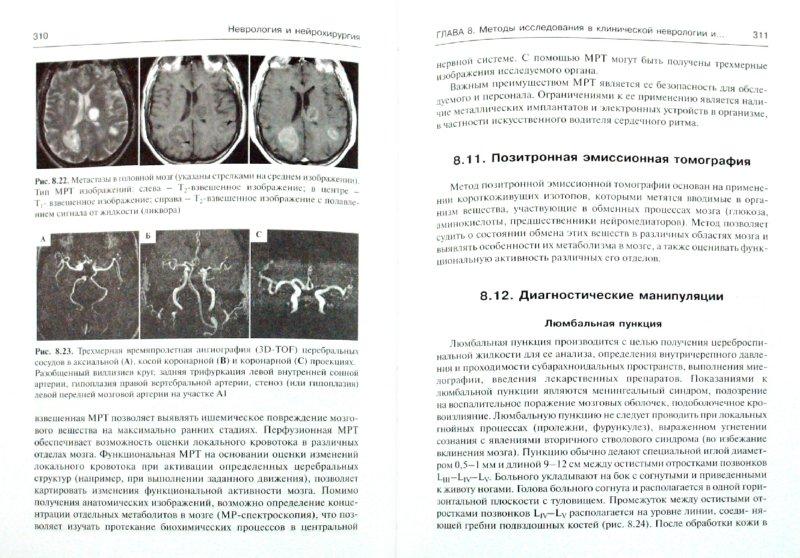Иллюстрация 1 из 22 для Неврология и нейрохирургия. Учебник. В 2-х томах. Том 1. Неврология (+CD) - Гусев, Коновалов, Скворцова | Лабиринт - книги. Источник: Лабиринт