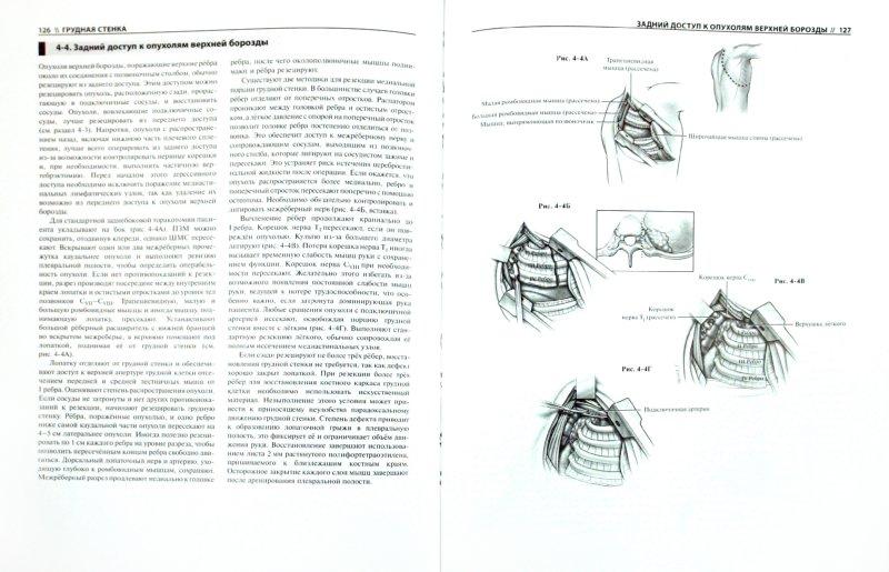 Иллюстрация 1 из 31 для Атлас торакальной хирургии - Марк Фергюсон | Лабиринт - книги. Источник: Лабиринт