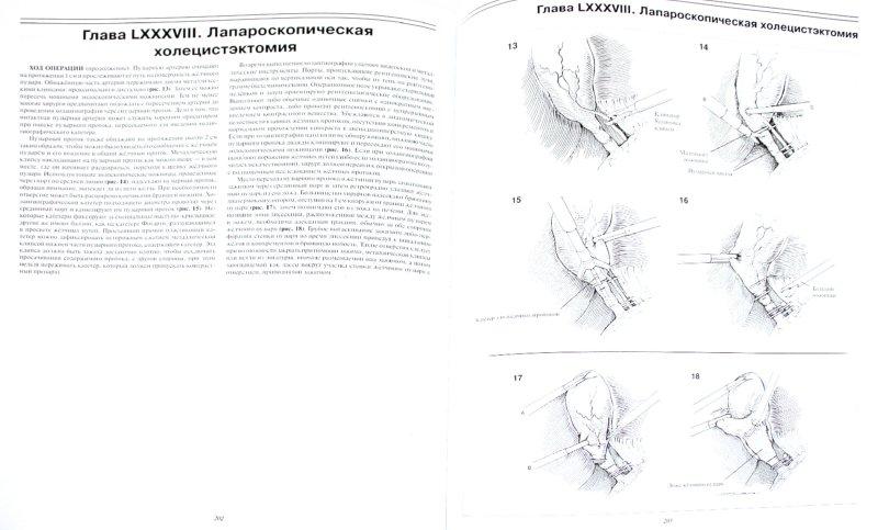 Иллюстрация 1 из 20 для Атлас хирургических операций - Золлингер, Золлингер | Лабиринт - книги. Источник: Лабиринт