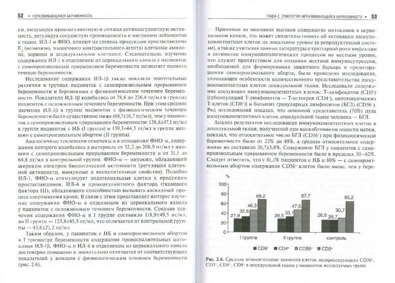 Иллюстрация 1 из 10 для Неразвивающаяся беременность. Тромбофилические и клинико-иммунологические факторы - Доброхотова, Джобава, Озерова | Лабиринт - книги. Источник: Лабиринт